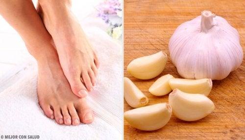 Behandlung eines eingewachsenen Nagels mit Knoblauch