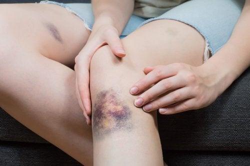 Bluterguss: 5 natürliche Tipps zur Linderung