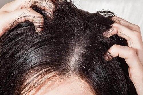 Gründe für deinen Haarausfall können auch Infektionen oder hier abgebildete Schuppen.