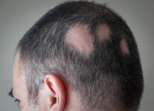 Männlicher Kopf mit kahlen Stellen