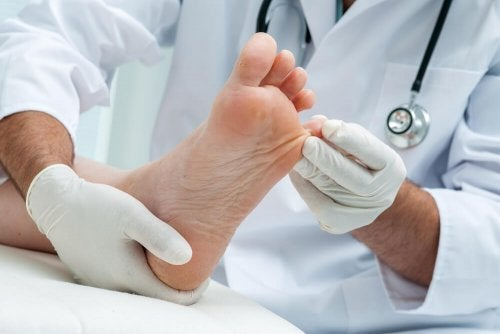 Pilzinfektionen der Haut: 7 natürliche Heilmittel