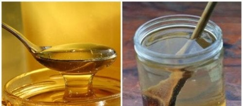 Lauwarmes Wasser und Honig bei Halsschmerzen