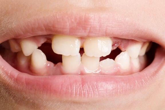 Zahnagenesie: Arten und Behandlungsformen