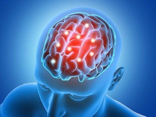 Zeichnung eines Gehirns im Kopf.