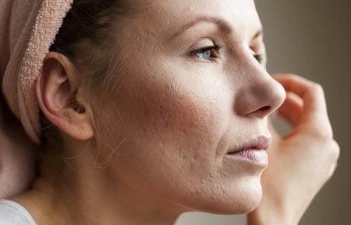 Die richtige Reinigung deiner Poren hilft sie zu verkleinern