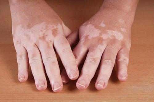Vitiligo kann weiße Flecken auf der Haut auslösen