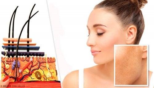 Hautflecken und ihre Ursachen