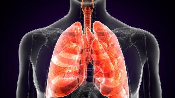 Was ist die Lungenpest und was sind ihre Symptome?
