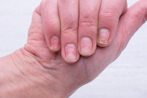 Das hilft gegen gelbe Fingernägel