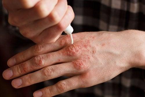 Feuchtigkeit für die Haut bei Psoriasisarthritis