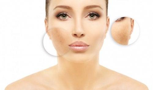 Ursachen für Gesichtsflecken