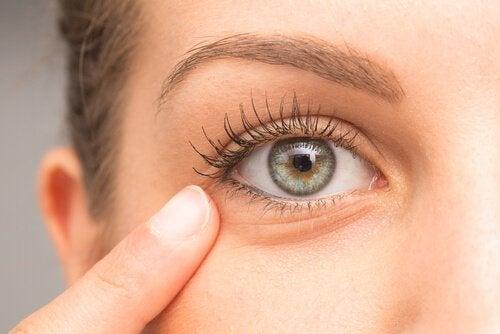 Diese Hausmittel helfen bei dunklen Augenringen