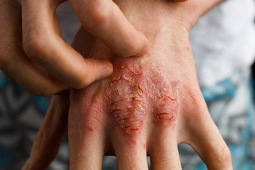 Psoriasis auf der Haut