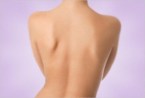 Akne am Rücken effektiv bekämpfen