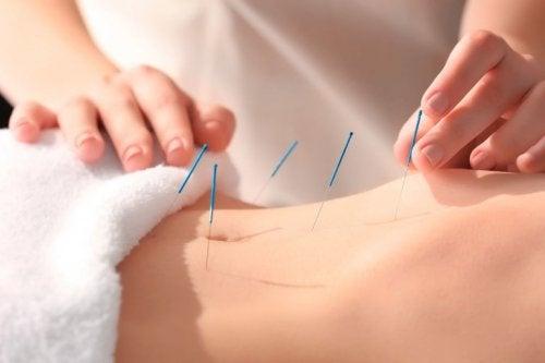 Akupunkturnadeln im Bauch