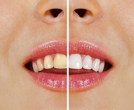 Aufhellung der Zähne mit Naturprodukten