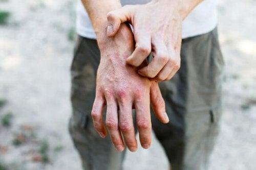 Kontaktdermatitis: 6 effektive Hausmittel