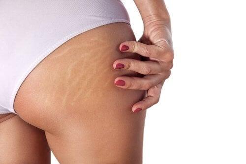 Cremes gegen Streifen auf der Haut