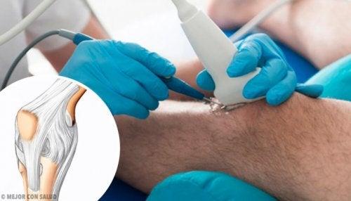 Vorteile der Kniearthroskopie