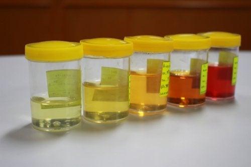 Veränderung des Urins: was es zu beachten gilt