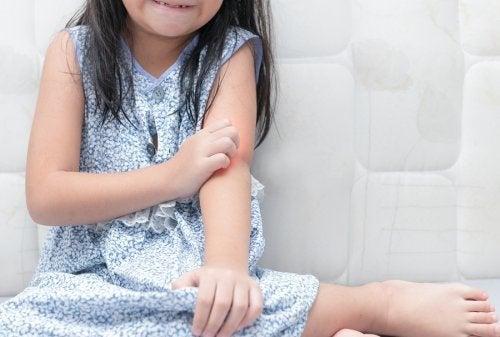 Schuppenflechte bei Kindern