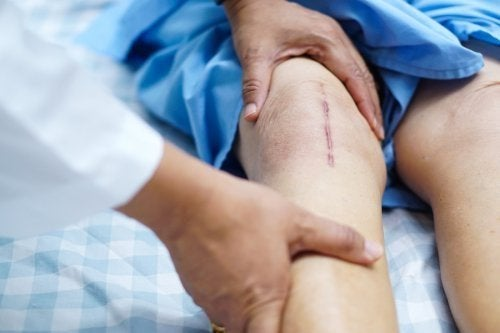 Genesung nach Operation am Knie