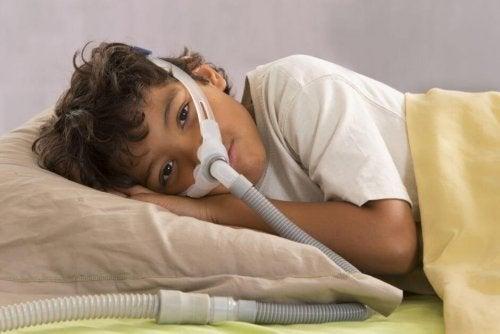 Obstruktives Schlafapnoe-Syndrom bei Kindern
