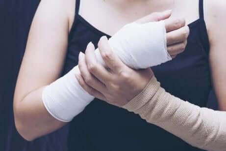 Gips und Schiene: Frau mit zwei verbundenen Armen