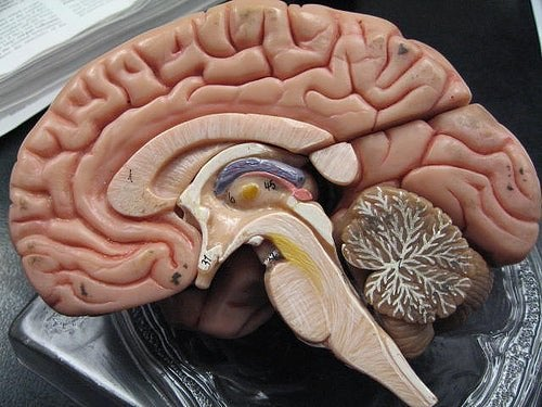 Subduralblutung und Subarachnoidalblutung