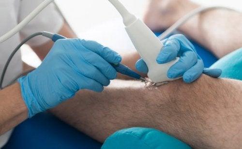 Symptome der Osetoarthritis am Kniegelenk