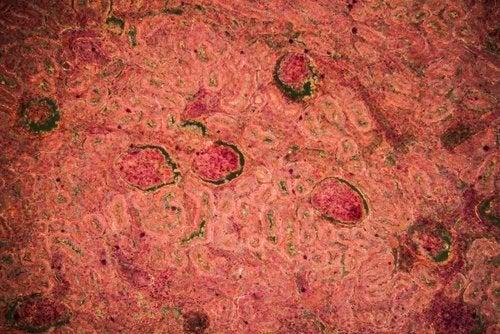 Nierentuberkulose: Diagnose und Behandlung