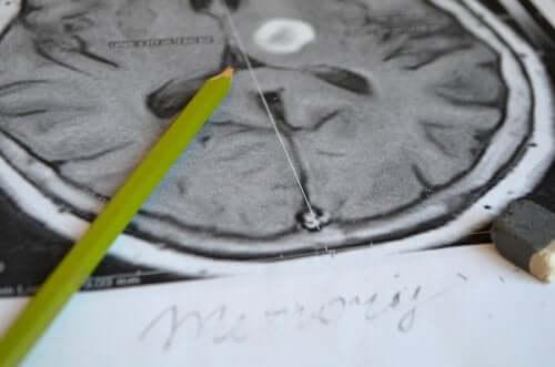 Amnesie: Symptome und Prävention