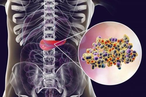 Zusammenhang von Süßstoff, Insulin und Adipositas