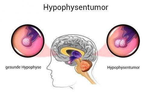 Hypophysentumor: Ursachen und Symptome