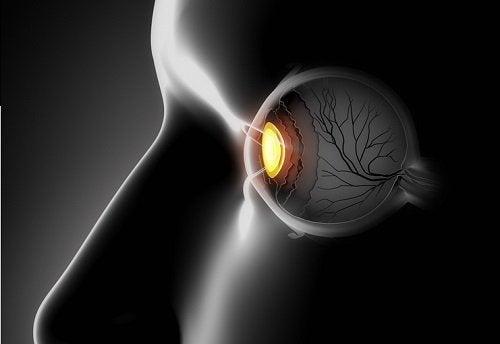 Schielen: Symptome und Ursachen