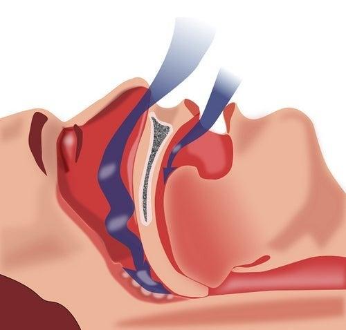 Schlafapnoe-Syndrom (SAS)