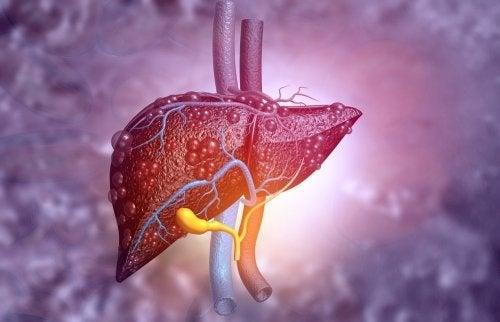 Gallengangatresie: Symptome und Behandlung