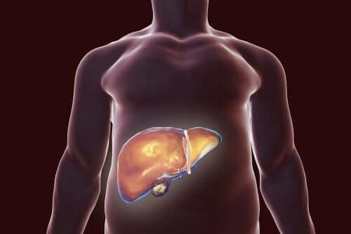 Richtige Ernährung bei Gallensteinen