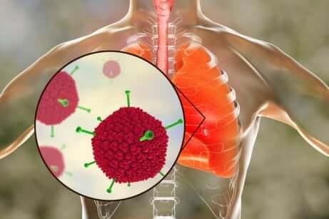 Das Schwere Akute Respiratorische Syndrom: Ursachen