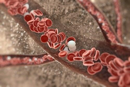 Wie wird eine Verletzung der Aorta diagnostiziert?