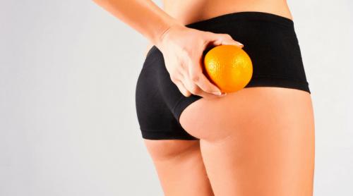Frau hält Orange an Orangenhaut am Gesäß