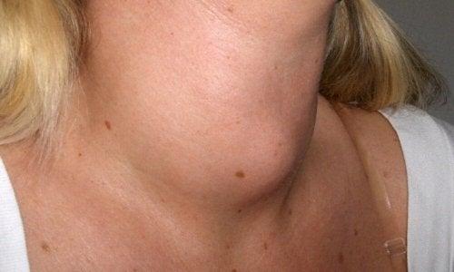 Knoten am Hals