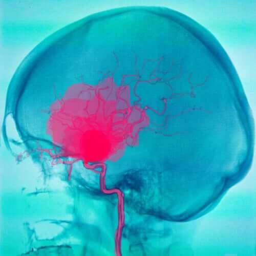 Zerebralparese