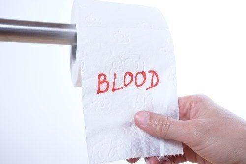 Blut im Stuhl: mögliche Ursachen - Besser Gesund Leben