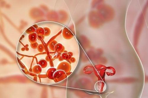 Genitale Mykoplasmen: Ursachen und Behandlung