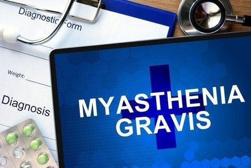 Wissenswertes über Myasthenia gravis
