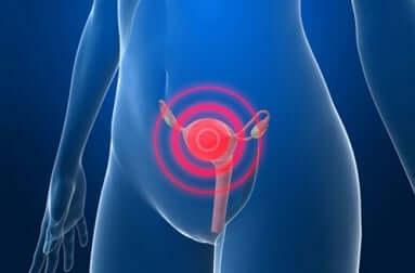 Ursachen für Adenomyosis uteri