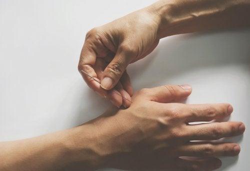 Akupunktur bei Gelenkschmerzen: Zwei Hände mit Akupunkturnadel