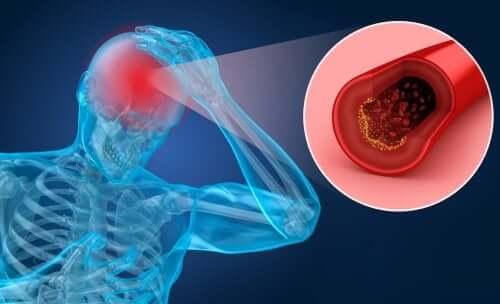 Apoplexie (Schlaganfall): Risikofaktoren und Symptome