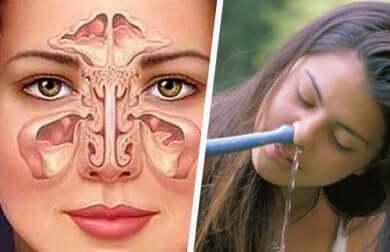 Techniken für eine Nasenspülung